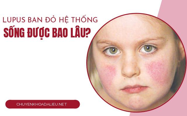 lupus ban đỏ hệ thống8