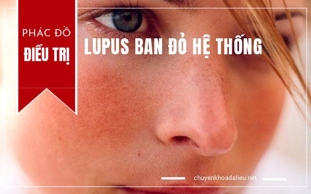 phác đồ điều trị lupus ban đỏ hệ thống