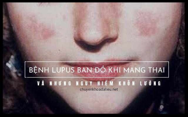 lupus ban đỏ khi mang thai