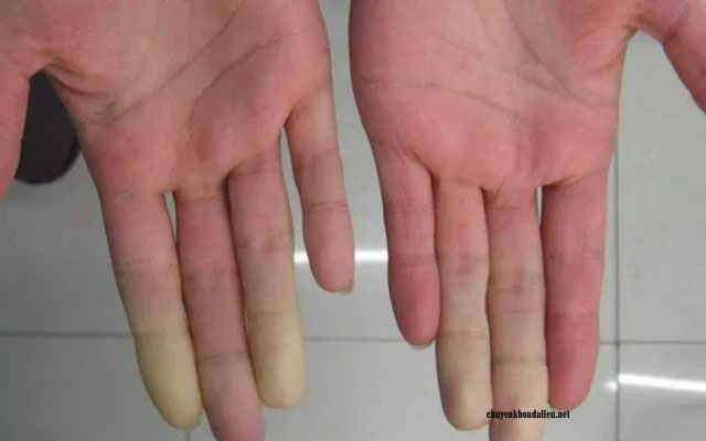 Hình ảnh lupus ban đỏ hệ thống