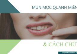 Mụn mọc quanh miệng là bệnh gì?