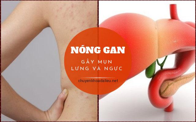 nóng gan gây mụn ở ngực và lưng