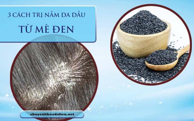 mè đen trị nấm da đầu