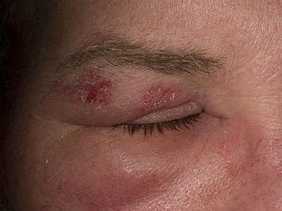 Cẩn trọng khi bị bệnh zona thần kinh ở mắt