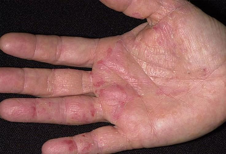 Ngứa lòng bàn tay bàn chân và cách trị đơn giản