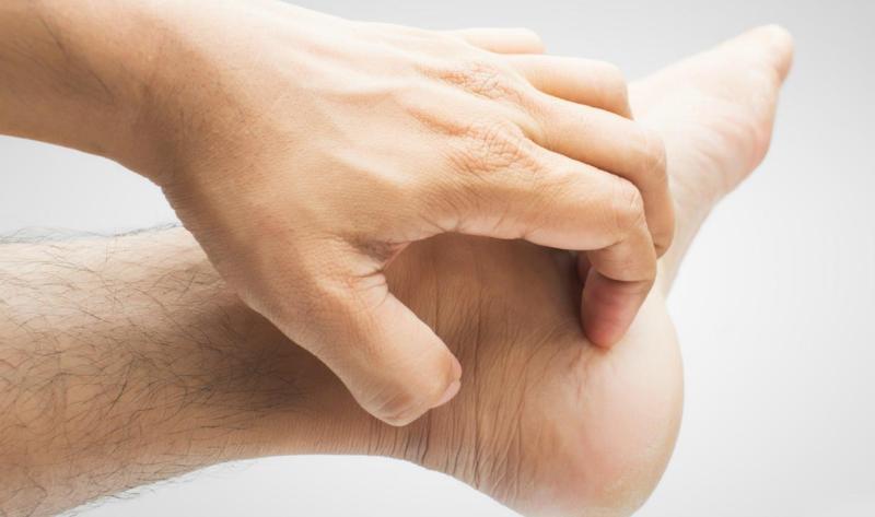 Cách trị ngứa lòng bàn tay bàn chân hiệu quả