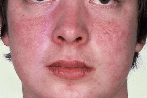 Bệnh Lupus ban đỏ có di truyền sang thế hệ sau không?