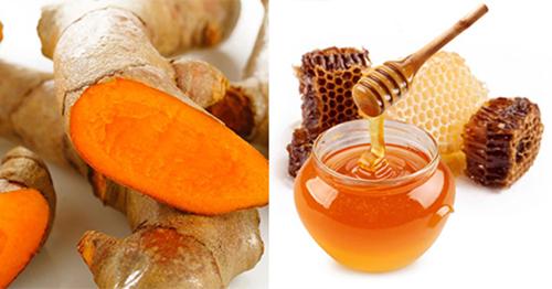 Nghệ tươi và mật ong chữa rạn da hiệu quả