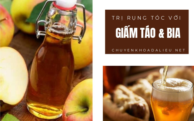 trị rụng tóc bằng bia và giấm táo
