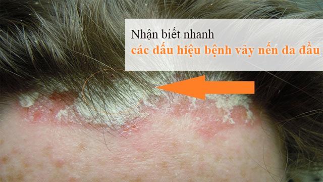 các dấu hiệu bệnh vẩy nến da đầu