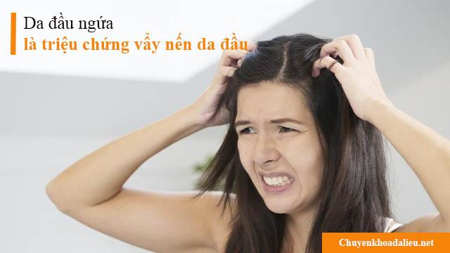 Da đầu ngứa là triệu chứng vẩy nến da đầu thường gặp