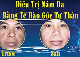 phuong-phap-tri-nam-da-bang-te-bao-goc2