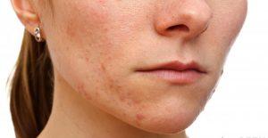 Hướng dẫn cách trị mụn cám cho da khô-1
