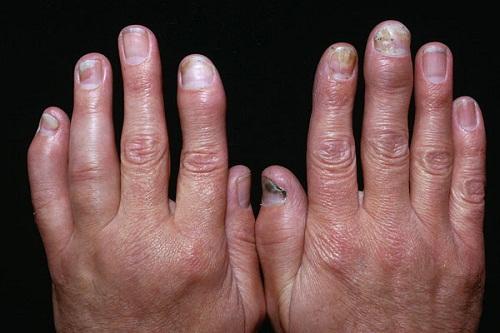 Cách phòng tránh các biến chứng của vảy nến đến xương khớp -1