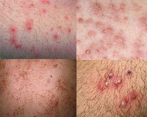Bệnh viêm nang lông ở vùng kín và cách chữa dứt điểm -1