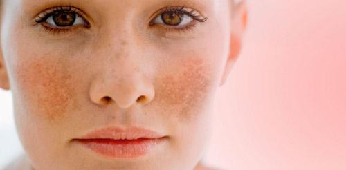 Cách trị nám da mặt sau sinh ở phụ nữ hiệu quả nhất-1