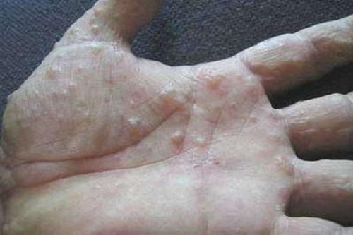Các triệu chứng bệnh tổ đỉa bàn tay