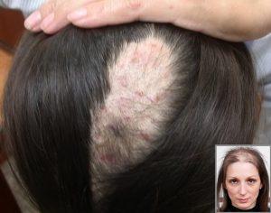 Bị rụng tóc và bong tróc da đầu có phải bệnh nấm da đầu? -2