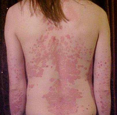 Bệnh vẩy nến - Bệnh khó chữa nhưng dễ tái phát -1