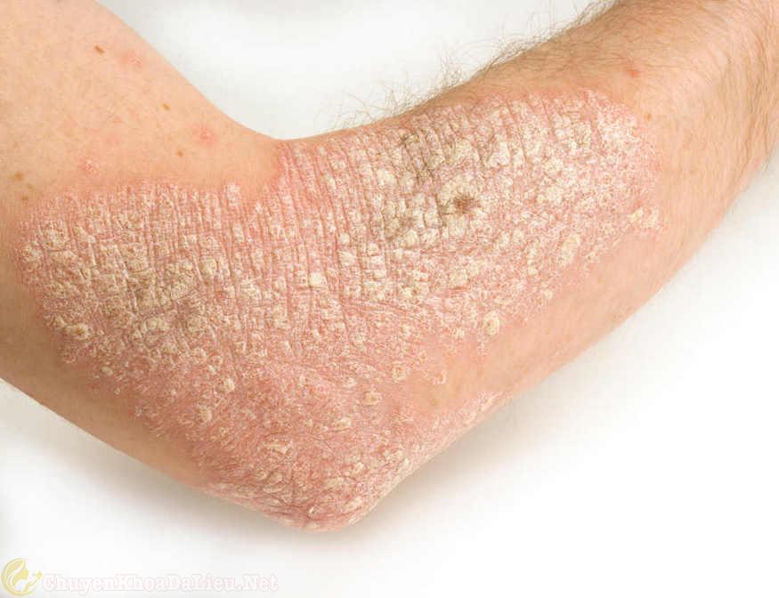 biểu hiện của bệnh vẩy nến