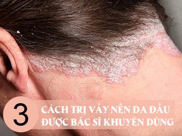 Cách trị vẩy nến da đầu hiệu quả