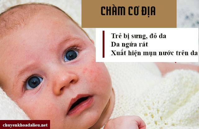 Các triệu chứng chàm cơ địa ở trẻ em