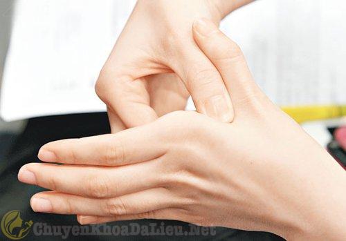 3 mẹo giúp giảm ngứa khi nổi mề đay