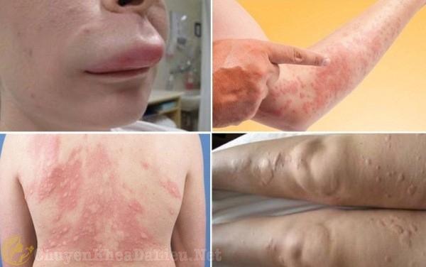 Làn da bị phồng rộp, sưng tấy, nhất là môi, mặt