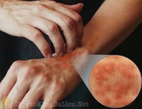 Dị ứng da, gây ngứa và bắt buộc người bệnh phải gãi