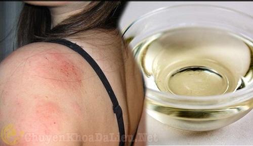 Thảo dược chữa bệnhEczema giúp khắc phục cơn ngứa