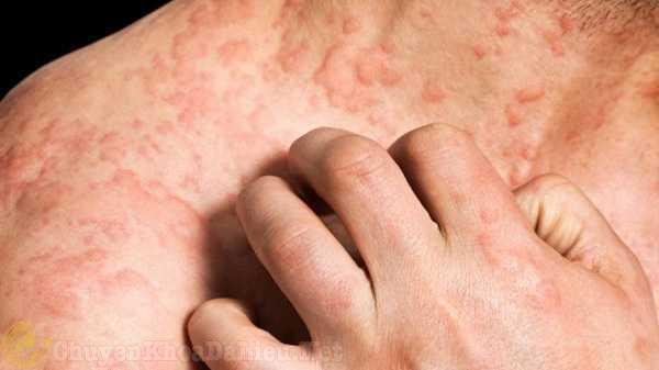 Mẹo giúp bạn ít bị ngứa hơn khi bị bệnh Eczema