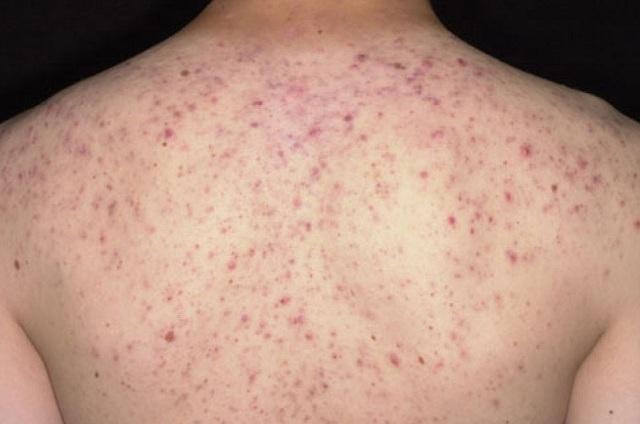 hiện tượng nổi mẩn đỏ ngứa ở lưng