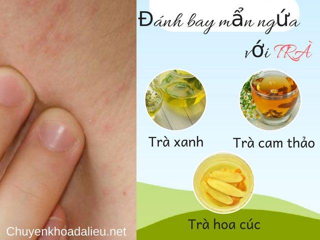 Các loại trà trị nổi mẩn ngứa trên da