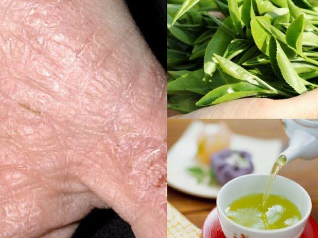 Cách chữa bệnh eczema bằng lá chè xanh