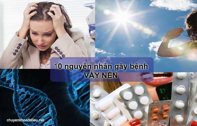 10 nguyên nhân gây ra bệnh vẩy nến