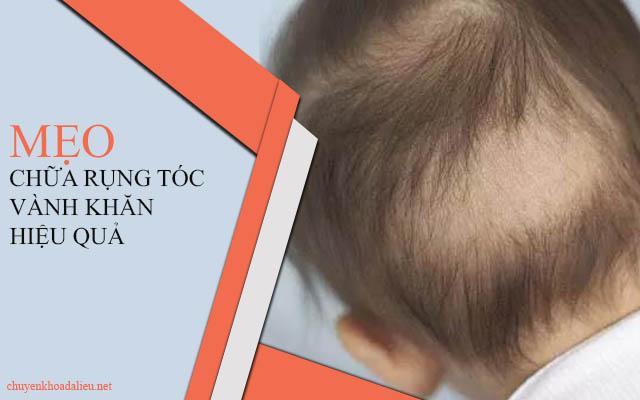 Rụng tóc vành khăn và những cách chữa trị hiệu quả