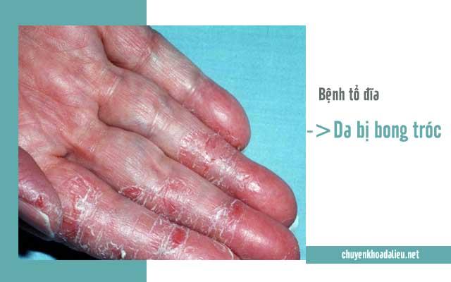 dấu hiệu thường gặp của bệnh tổ đĩa