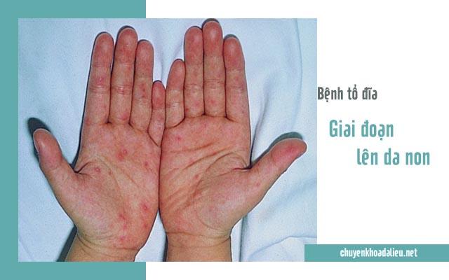 Nhận biết giai đoạn lên da non của bệnh tổ đĩa