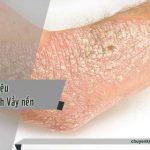 dấu hiệu nhận biết bệnh vẩy nến