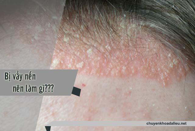Có dấu hiệu bệnh vẩy nến nên làm gì?