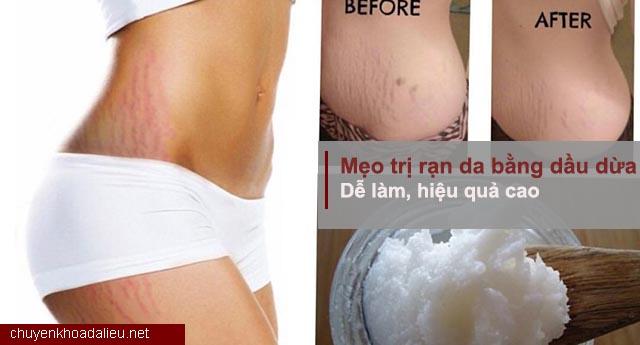 Cách trị rạn da bằng dầu dừa