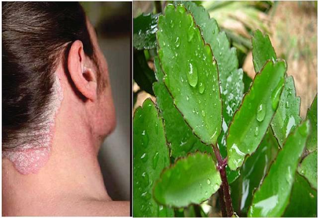 Cách chữa vẩy nến da đầu bằng cây sống đời