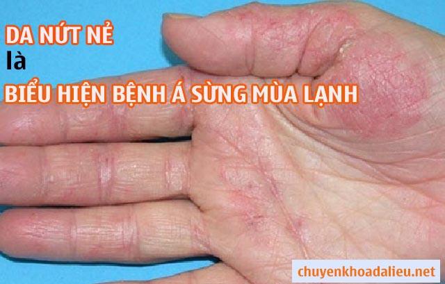 Da bị nứt nẻ là biểu hiện của bệnh á sừng