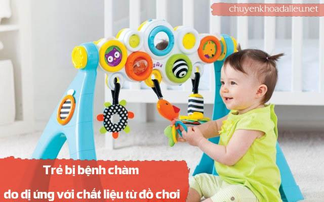 dị ứng đồ chơi là nguyên nhân gây bệnh chàm ở trẻ em