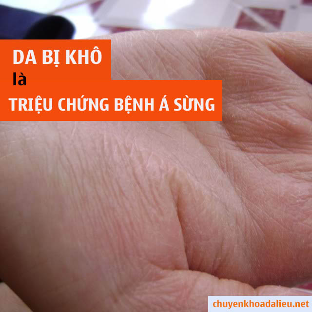 Da tay khô là triệu chứng bệnh á sừng