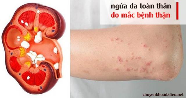 Mắc bệnh thận là một trong các nguyên nhân gây ngứa toàn thân phổ biến