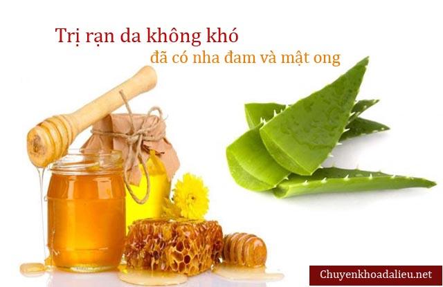 Thuốc chữa rạn da từ nha đam và mật ong
