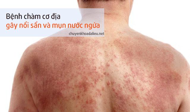 Da nổi mụn nước sẩn đỏ là triệu chứng của chàm cơ địa