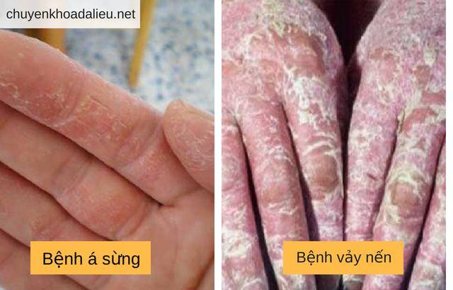 Phân biệt bệnh á sừng và bệnh vẩy nến