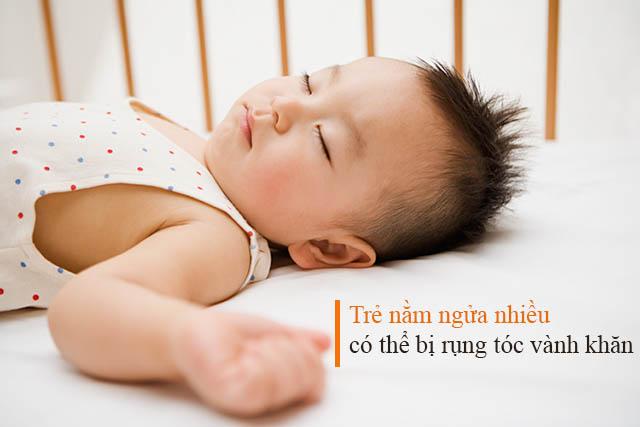 Rụng tóc hình vành khăn do trẻ nằm ngửa nhiều
